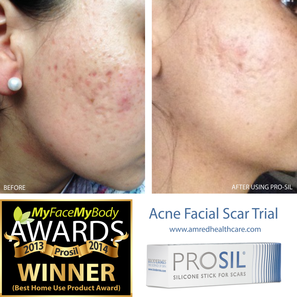 Pro Sil The Best Treatment For Scars By Biodermis Amred Healthcare Amred Healthcare Ltd