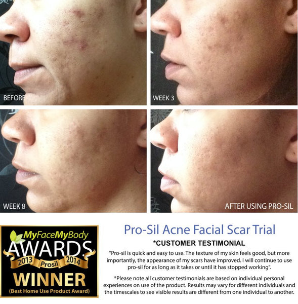 Acne facial scars before and after