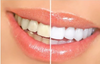 White-Now™ Three use, Pro. Home, Family,Tooth Whitening Kit.