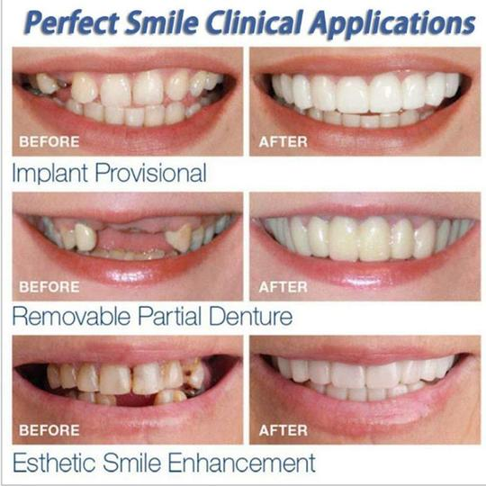 Instant Smile - Snap on a perfect and confident smile every time!