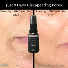 Load image into Gallery viewer, best buy pore closing serum, pore closing serum, best pore closing serum, pore refining serum, best pore refining serum, pore diminishing serum, best pore diminishing serum,