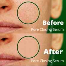 Load image into Gallery viewer, pore closing serum, pore refining serum, best pore closing serum, best pore diminishing serum, natural organic skincare, best skincare, best natural organic skincare,