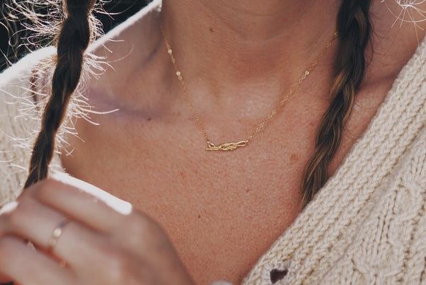 The Figure Eight in Gold