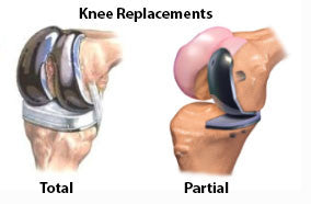 Total and partial knee replacent surgery