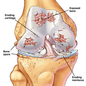 Easy Exercises for Knee Arthritis