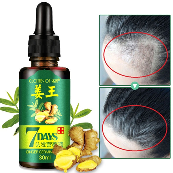 7 Days Ginger Essence Hairdressing Hairs Mask Hair Essential Oil Hair Care Oil Essential Oil Dry and Damaged Hairs Nutrition-Justt Click