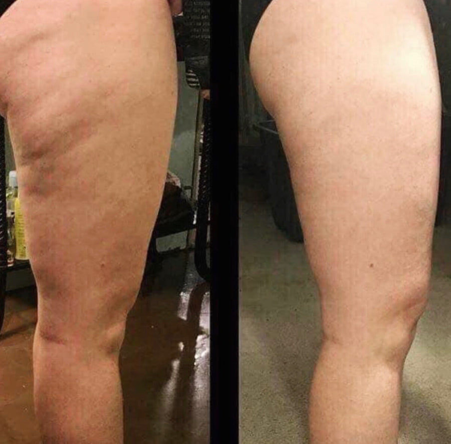 Dermatic Effects - Anti-Cellulite Treatment