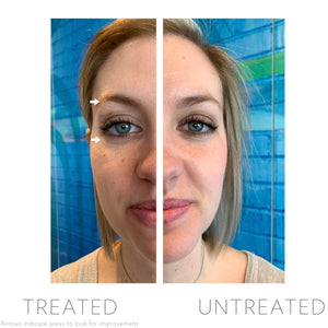 LumiSpa Accent with Ideal Eyes!