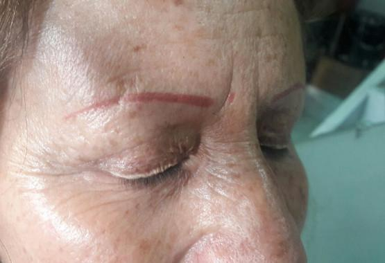 Permanent Makeup Risks and Complications