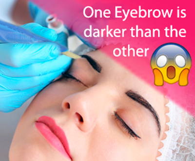 What if one eyebrow looks darker than the other after the procedure?