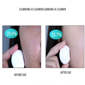 Electric Face Cleanser
