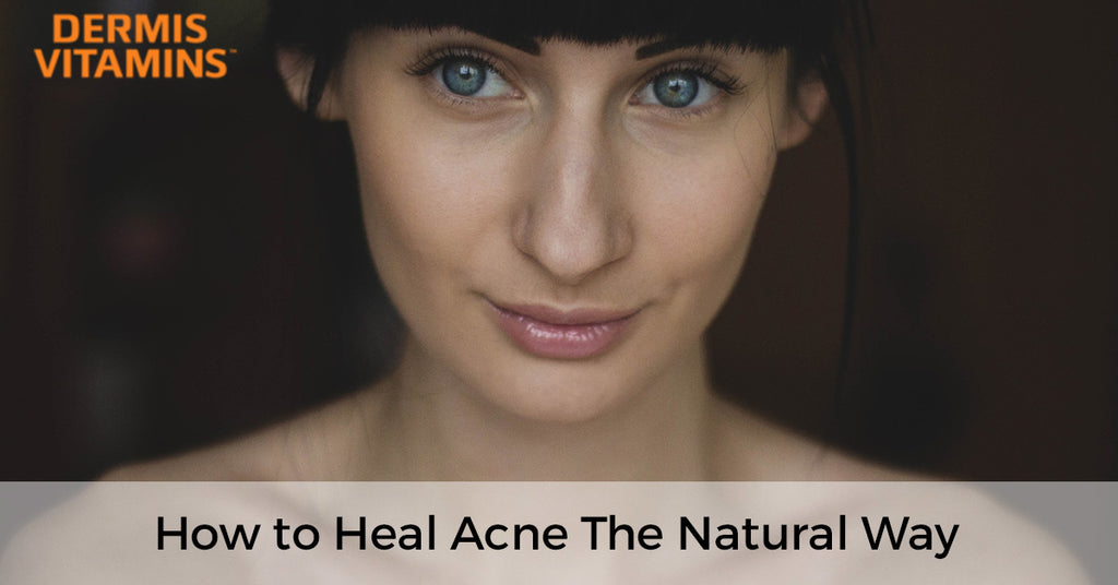 How To Heal Acne The Natural Way
