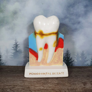 Crest Vintage Plaster Dental Disease Model