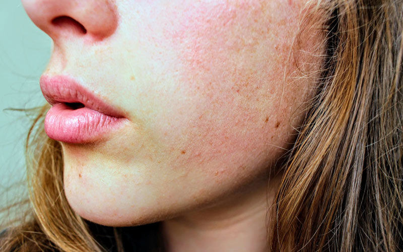 Close-up on young woman face skin with rashes