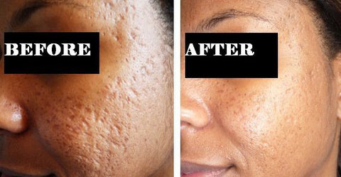 acne scaring before and after