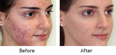 acne treatment before and after using the fcr