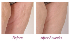 Silhouette cellulite reduction reviews