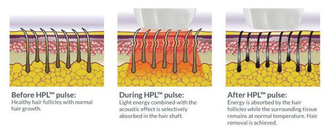 Hair Removal illustration
