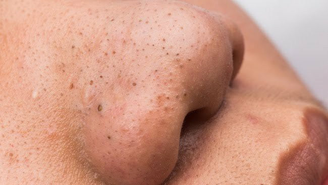 What Do Your Skin Blemishes Say About Your Habits