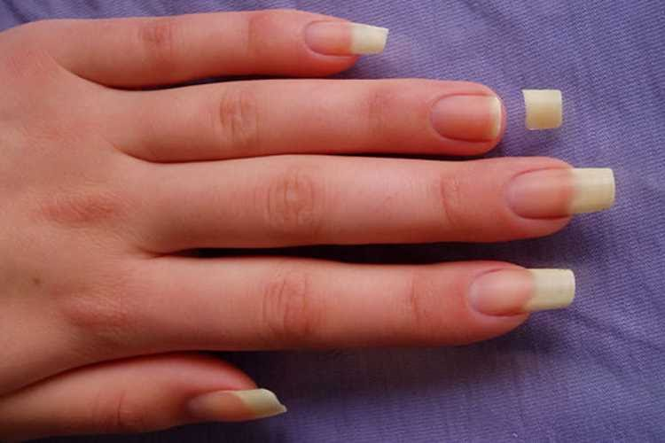Signs That Tell You To Chop Your Nails Short!