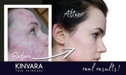 How to Treat Problem Skin with Kinvara Skincare