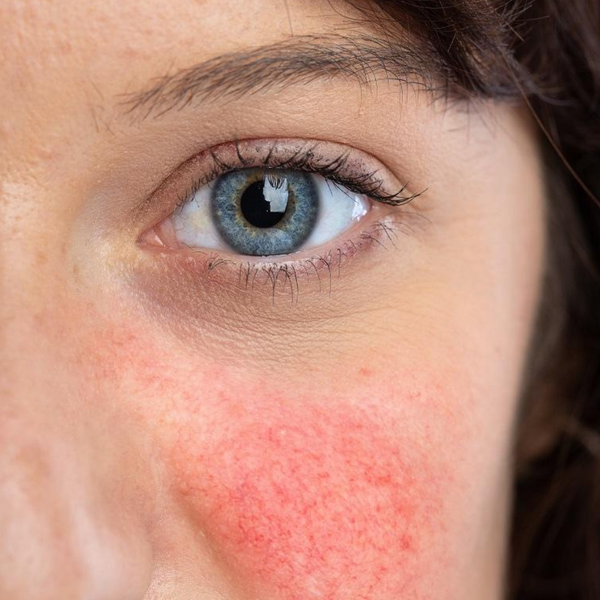How To Treat Rosacea: 6 Superb Skincare Tips