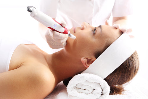 What Microneedling Can Do For Your Face?