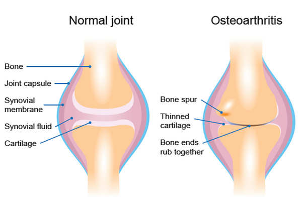 Lidocaine Cream for Instant Pain Relief from Osteoarthritis: PART 1