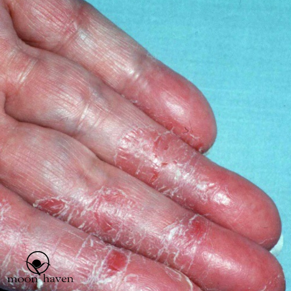 Irritant Contact Dermatitis OR Don't Use A Body Wash If You Have Sensitive Skin