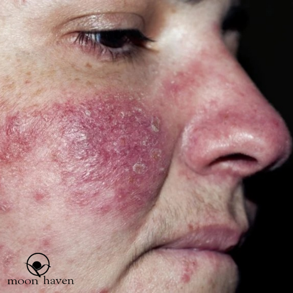 Is it really Acne? or could it be Papulopustular or Inflammatory Rosacea?