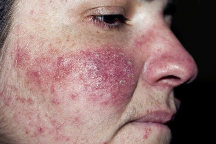 acne or rosacea...how to tell the difference