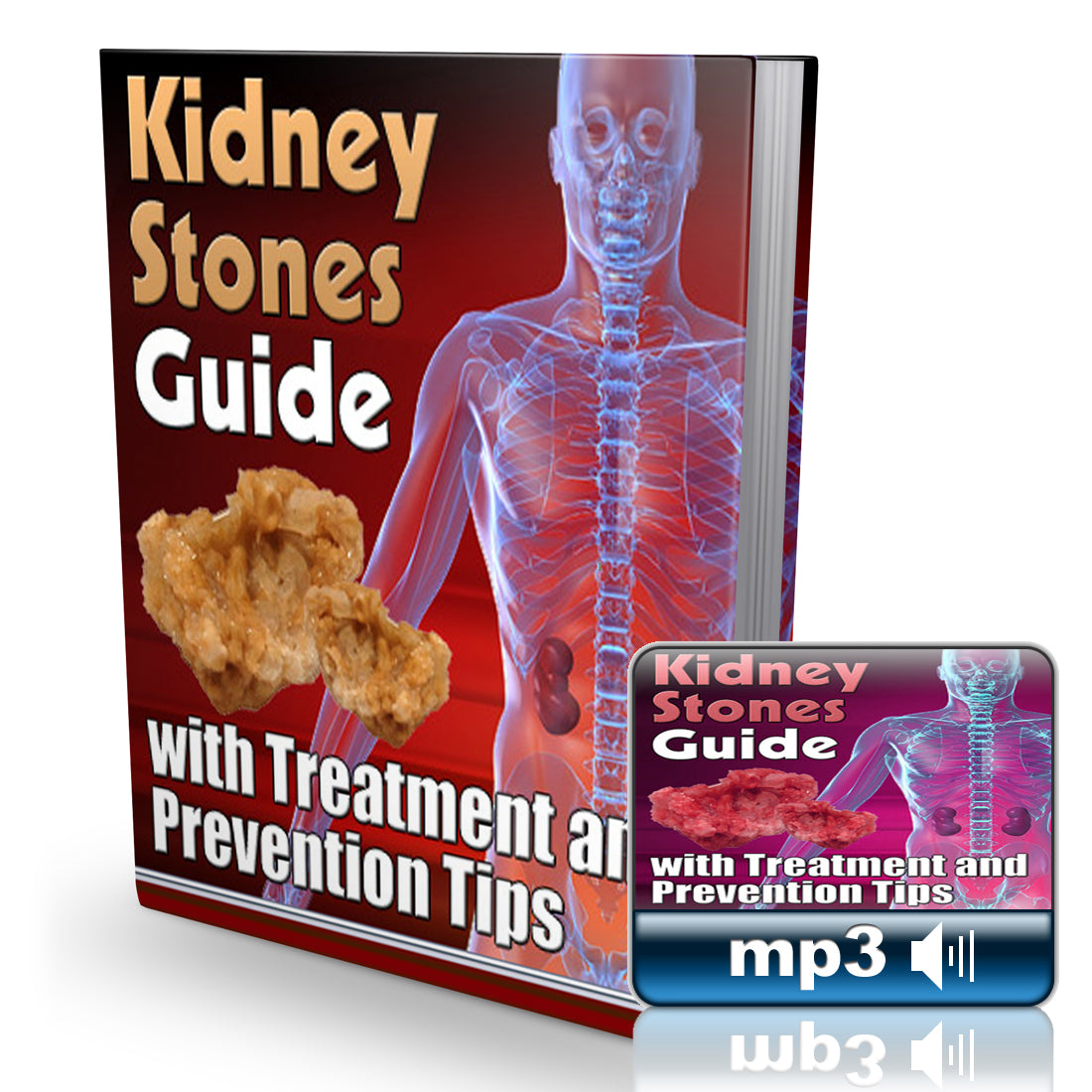 Kidney Stones Guide Combo - Book + Audio Book
