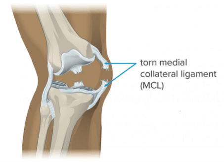 Medial Collateral Ligament (MCL).