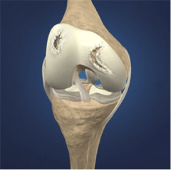 Cartilage Injury