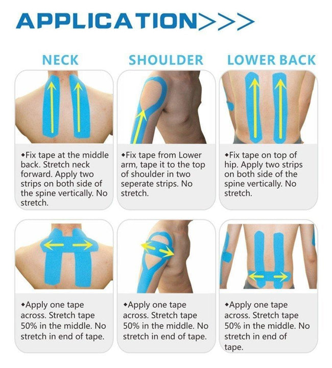 Use of Kinesiology Tape