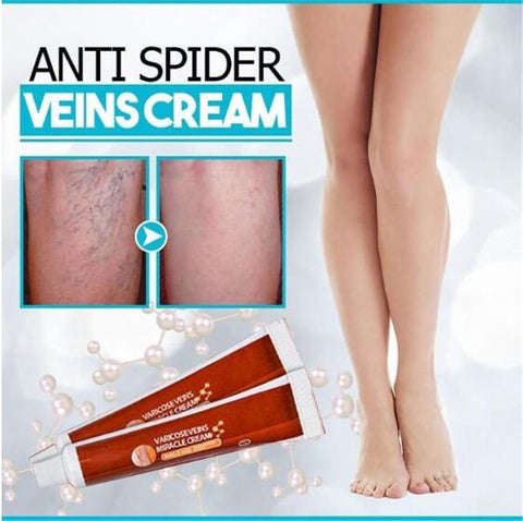 Varicose Veins Miracle Cream - Anti Spider Veins Cream