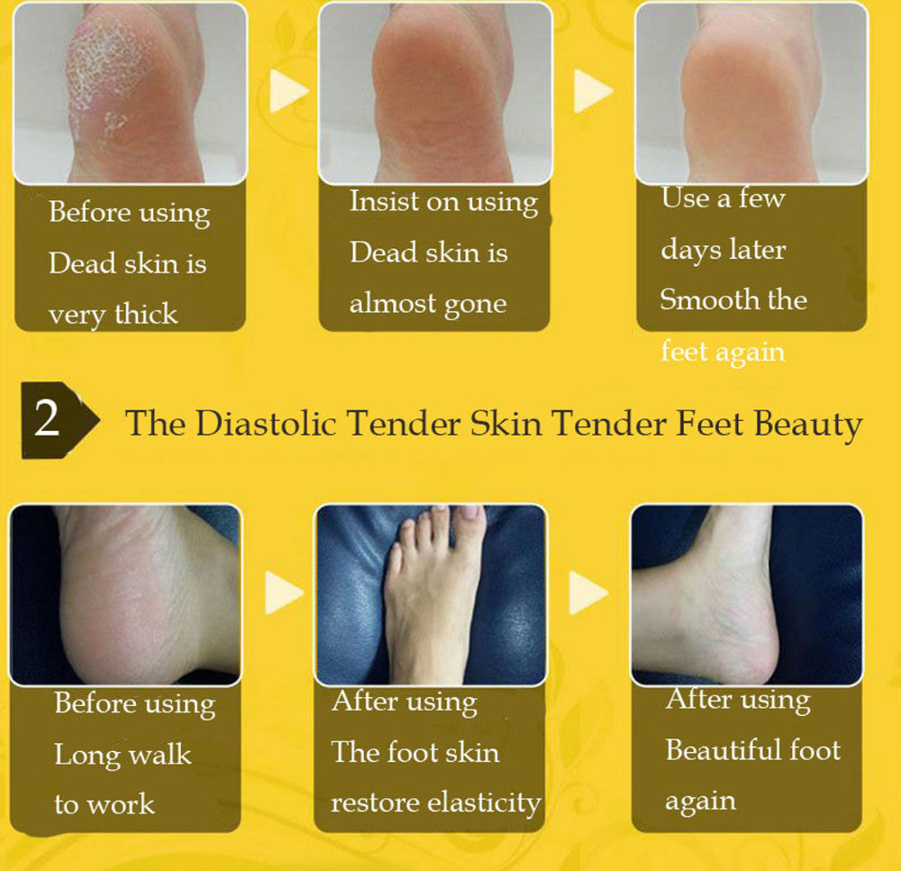 Exfoliating Repairing Ginger Foot Cream