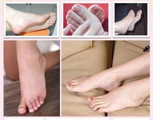 Dead Skin Remover™ Foot Mask
