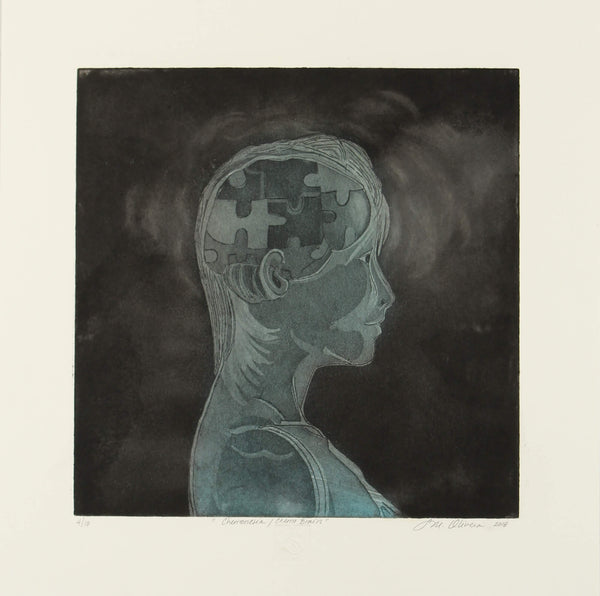 Aquatint and etching print of portrait of a breast cancer patient depicting the brain effect of chemotherapy by Susan Olivera