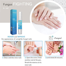 Nail Treatment Pen Onychomycosis Paronychia Anti Fungal Nail Infection Chinese Herbal Toe Fungus Care Repair Serum