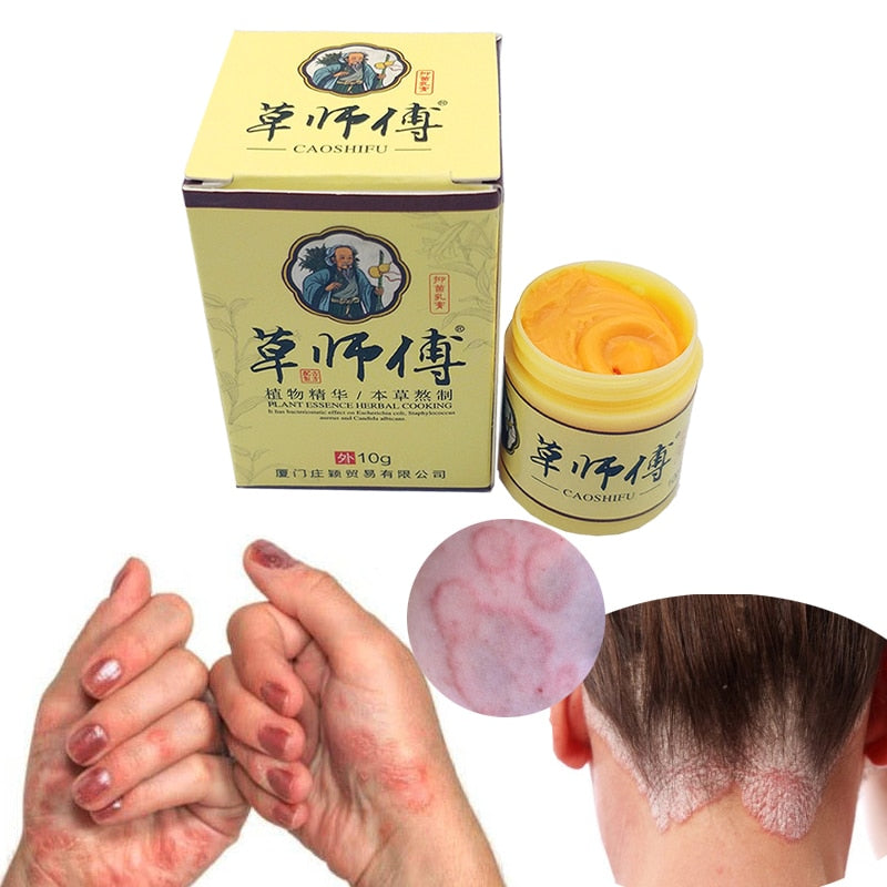 Psoriasis Eczma Cream For All Kinds Of Skin Problems Patch Body Massage Ointment Chinese herbal Medicine