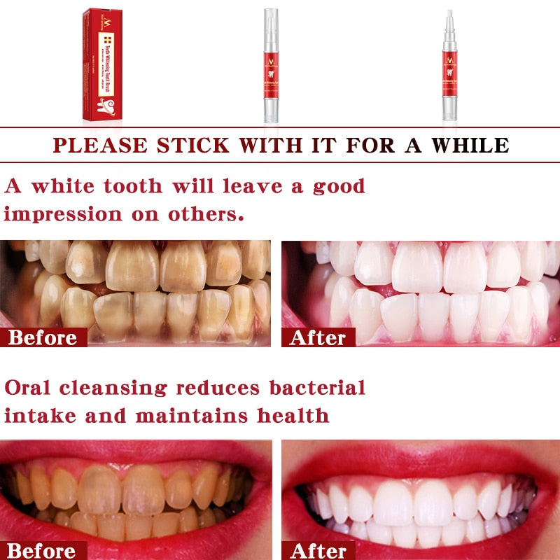 Teeth Whitening Tooth Brush Essence Oral Hygiene Cleaning Serum Removes Plaque Stains Dental Tools