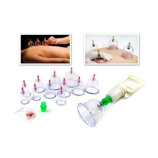Chinese Body Cupping Massage Suction Therapy | Shop Online | Snatcher
