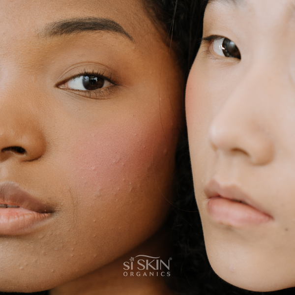 What Your Skin Is Trying To Tell You