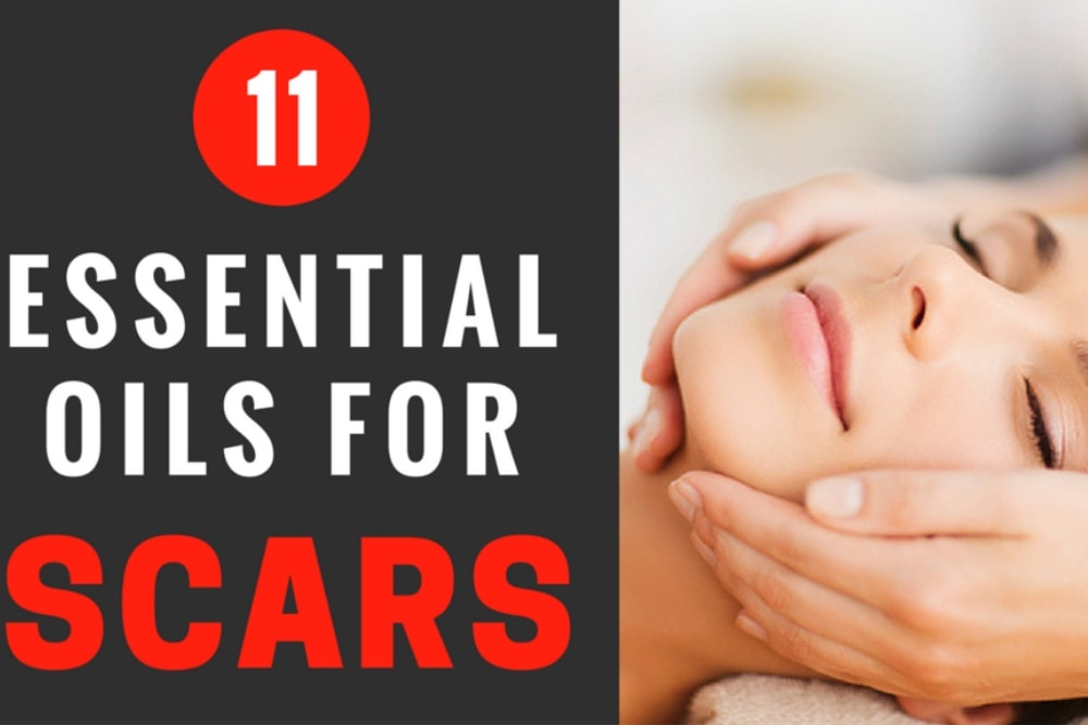 The 11 Best Essential Oils For Scars