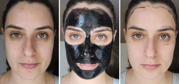 Deep Cleansing Blackhead Removal