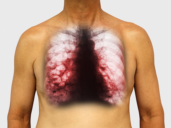 Asbestosis and Bronchiectasis: Reduce Their Damage By Developing Your Breathing