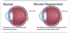 Comparison diagram of a normal eye vs one with Macular Degeneration