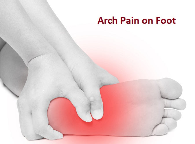 How to Prevent and Treat Foot Arch Pain