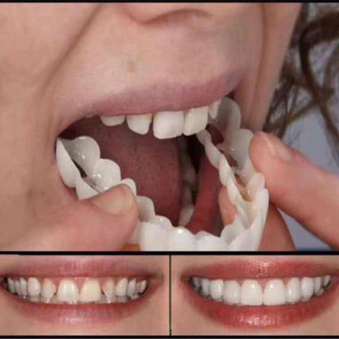 Oral Hygiene for Bad Teeth Smile Veneer